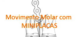 Movimentando Molar com MINIPLACAS