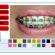 Borrachinhas para Aparelho – Escolha uma combinação diferentona e mate o seu ortodontista de raiva…