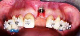 REMOÇÃO de implantes osseointegrados