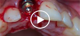 Implante Imediato — RÁPIDO E SEGURO