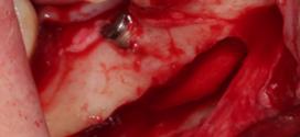 INCRÍVEL vídeo de Lateralização de Nervo Alveolar Inferior